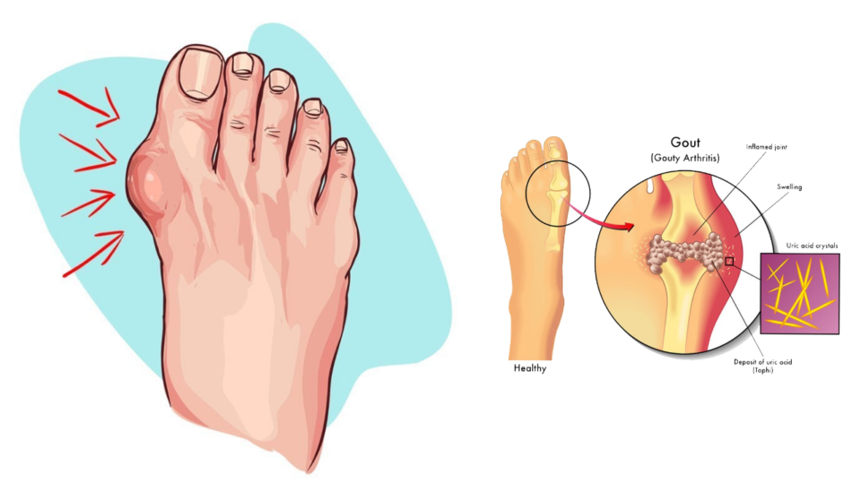 end-of-gout-program-by-shelly