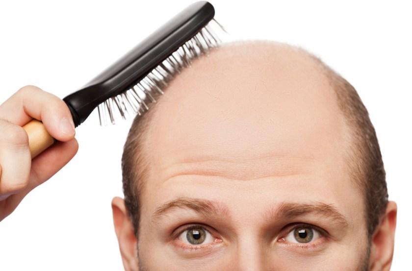 Hairfortin pills