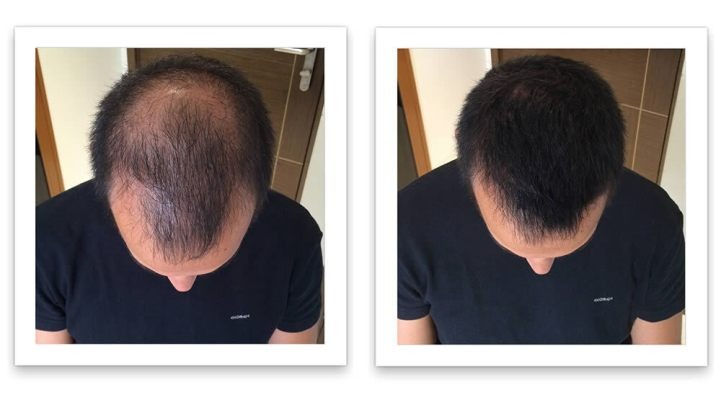 hairfortin work